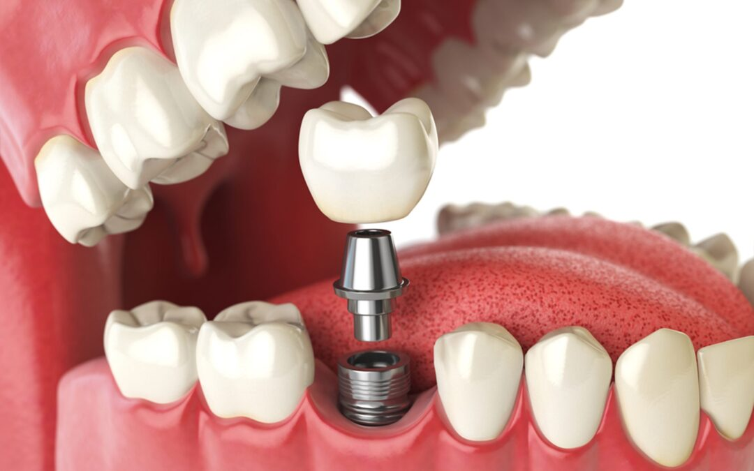 all you need to know about the dental implant process in canada